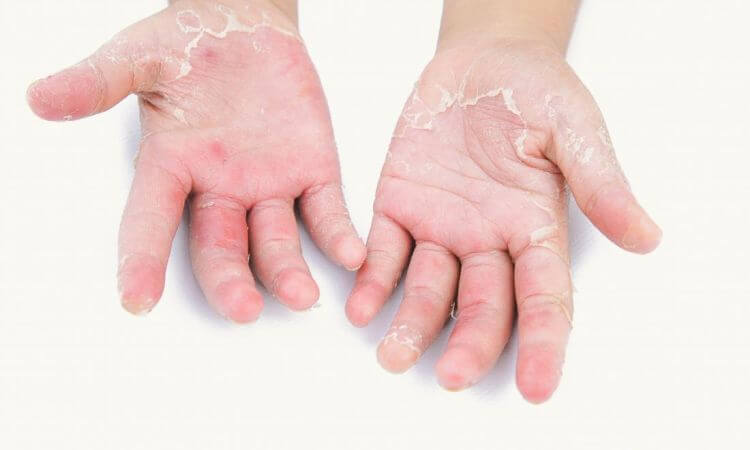 Psoriasis Treatment In Instrumentation Limited Colony